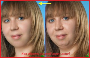 можно убрать жир лица